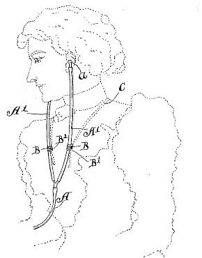 patent-us663393
