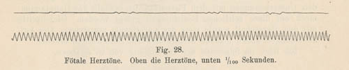 weiss-fetal-heartbeat